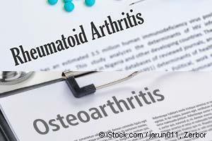 osteoarthritis vs rheumatoid arthritis