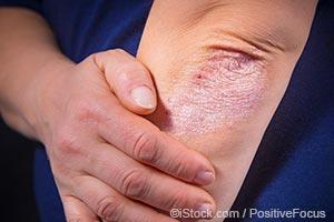 skin and joint pain