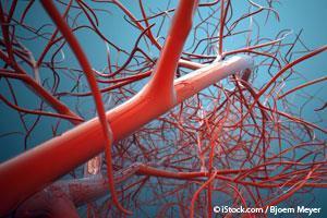 Calcificacion Arterial