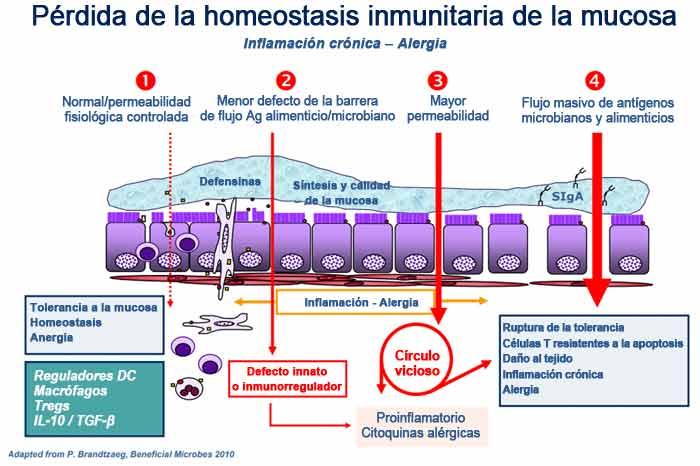 Pérdida de la homeostasis inmunitaria de la mucosa