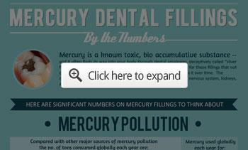dental fillings infographic