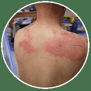 Consejos para curar las quemaduras