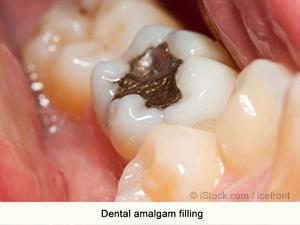 dentalamalgam
