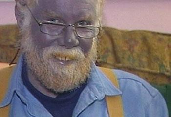 blue skin, argyria, colloidal silver