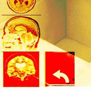 mental, memory, brain, memory loss, alzheimer's, dementia, brain health, meditation