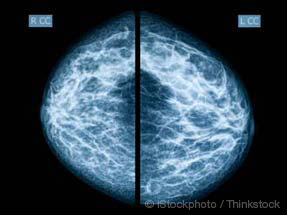 mammogram film
