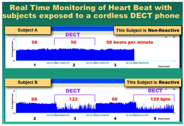 Real Time Monitoring of Heart Beat