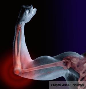 Huesos y Osteoporosis