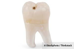 Los Beneficios de la Odontología Mínimamente Invasiva