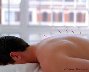침술: 암 치료제의 부작용도 완화시킵니다.