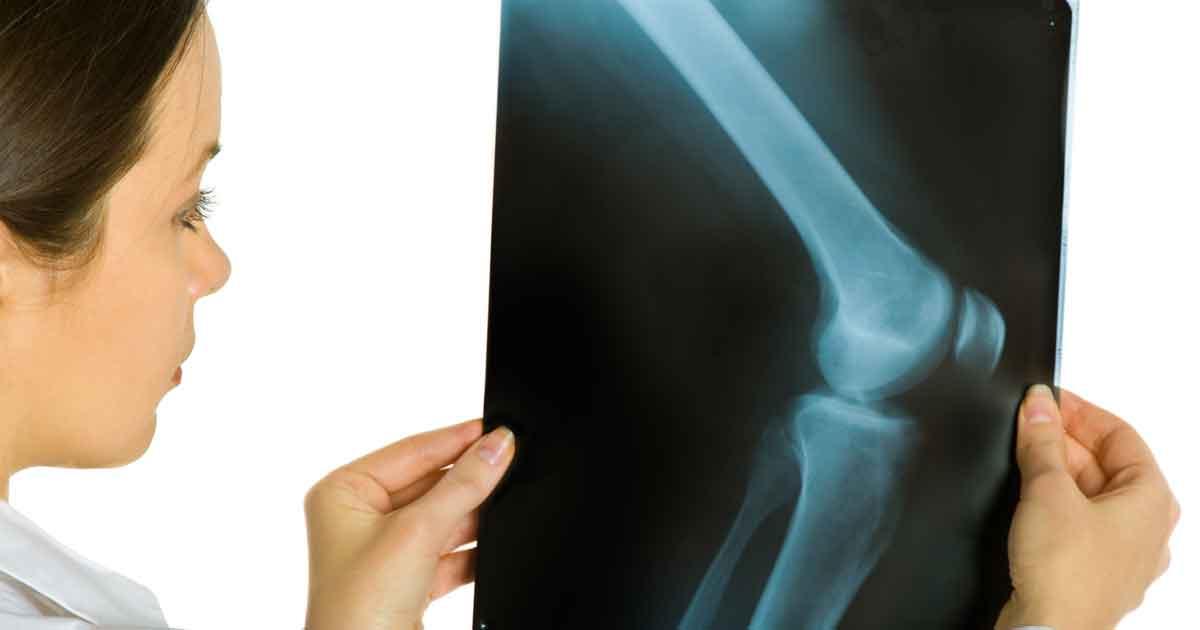 관절경 무릎 수술
