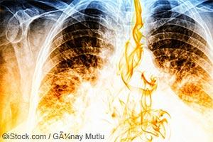肺癌-罹患肺癌