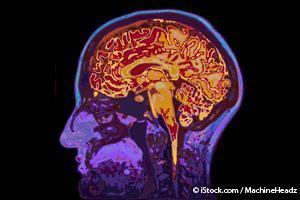 記憶障害と認知症