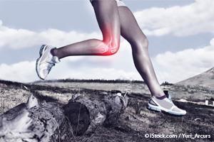 Os Exercícios Podem Funcionar Tão Bem Quanto a Cirurgia nas Lesões de Joelho