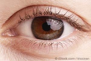 如何通过眼部预知疾病