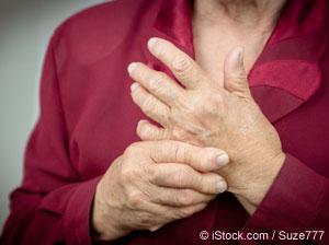 류머티즘 관절염