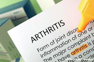 Stratégies pour lutter contre l'arthrose de la hanche