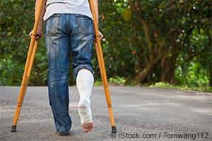 ビスホスホネート製剤―脚の骨折をまねく骨粗鬆症薬