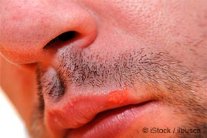 Лихорадка на губах
