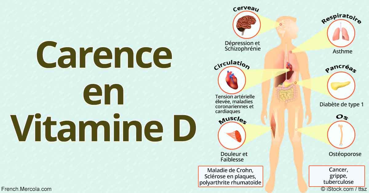 7 signes qui peuvent t moigner d une carence en vitamine d. Black Bedroom Furniture Sets. Home Design Ideas