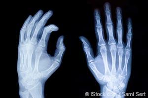 Relatos Inspiradores Sobre Como Fazer a Artrite Reumatoide Entrar em Remissão