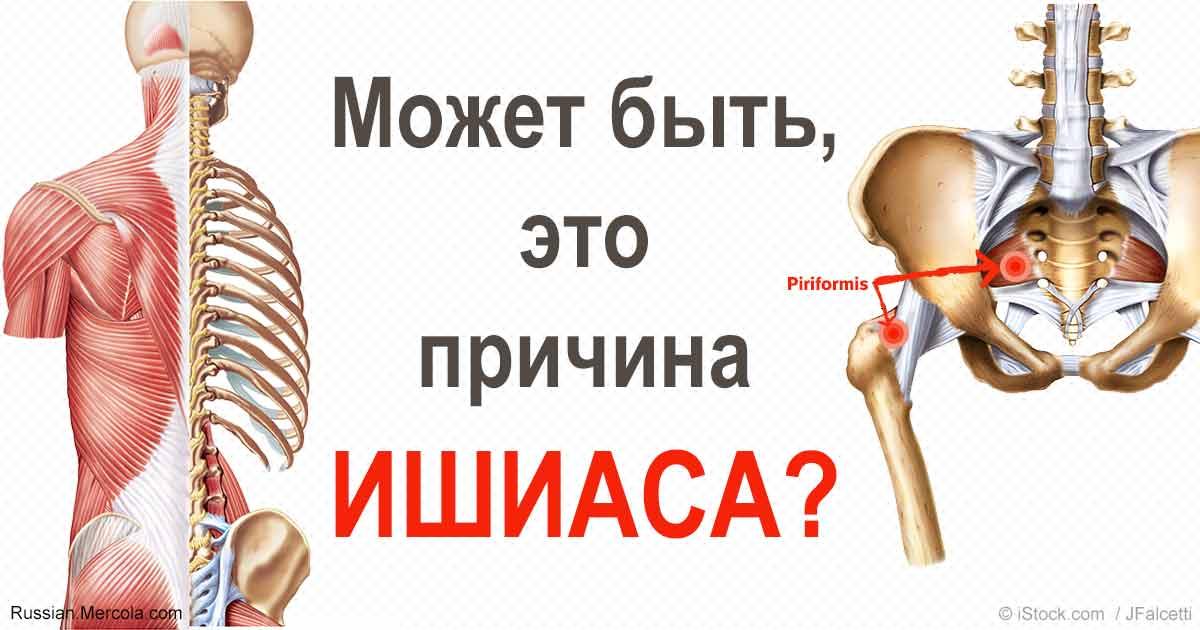 Синдром ягодичной мышцы