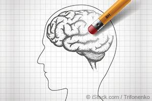 인간 두뇌의 소멸