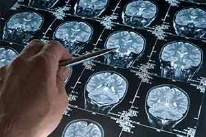 MRI 두뇌 스캔