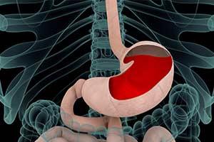 15 Naturalnych sposobów leczenia refluksa kwasowego i wrzodów