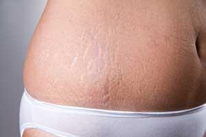 자연스럽게 튼살(Stretch marks)을 없애는 방법