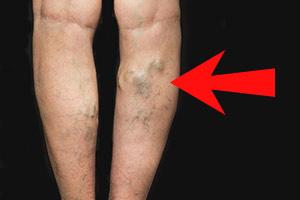 Витамин K связывают с улучшением состояния сосудов и уменьшением варикозного расширения вен