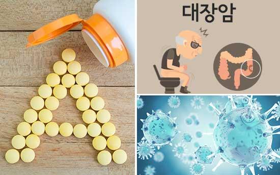 비타민 A는 대장암을 예방합니다