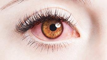 눈을 보면 당신의 건강 상태를 예측할 수 있습니다