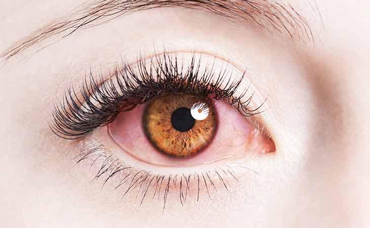 眼睛能否反映健康问题?