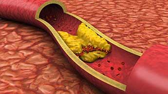 Znaczenie cholesterolu
