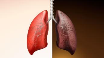 Les bonnes et les mauvaises nouvelles qui accompagnent l'arrêt du tabac