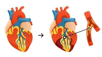 Le mythe du cholestérol qui nuit à votre santé (1ère partie)