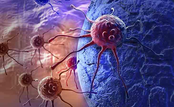 癌症的代谢理论以及癌症预防与恢复的关键手段