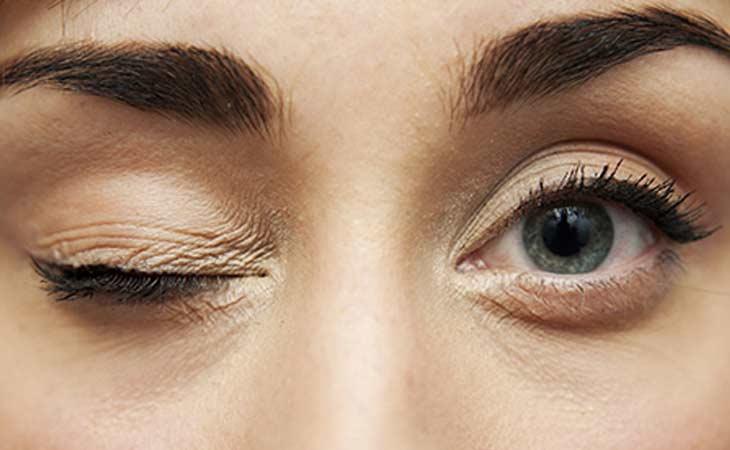 眼睑痉挛意味着什么?