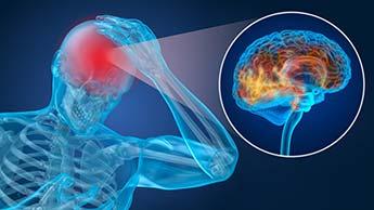 뇌 종양의 가장 흔한 징후들