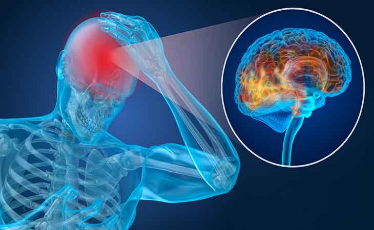 您知道脑肿瘤的常见征兆有哪些吗?