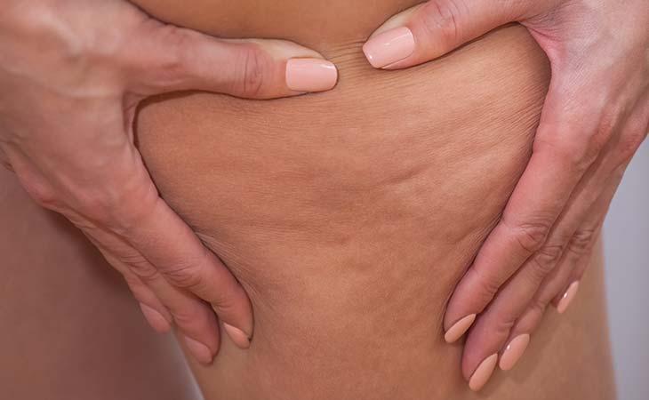 脂肪团如何形成,又能否消失?
