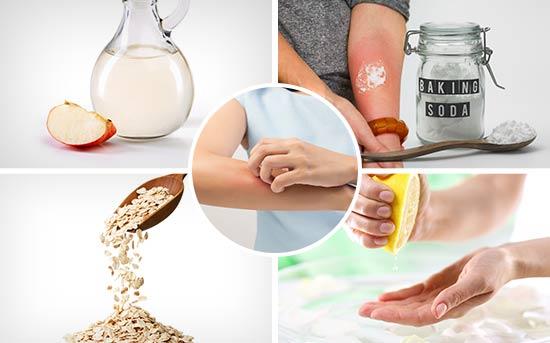 皮肤瘙痒的天然缓解方法