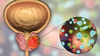 男性への注意事項:前立腺肥大をがんに変性させる危険がある薬剤