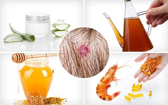 지루성 피부염 치료를 위해 가정에서 쉽게 사용할 수 있는 방법