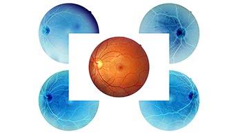 anatomie de l'œil humain