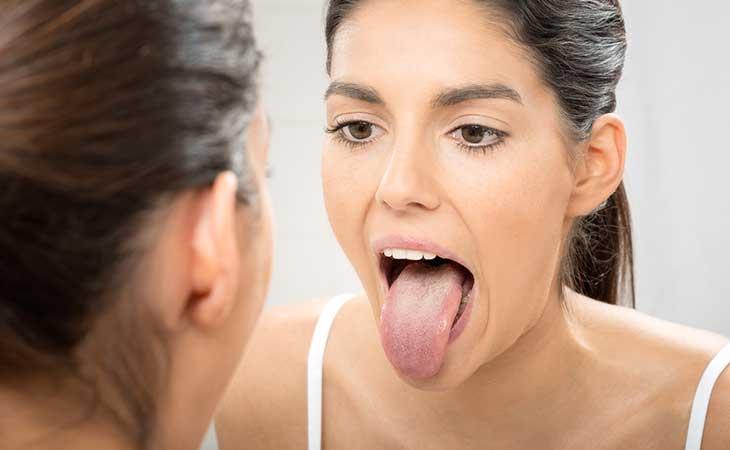 通过舌头看 9 种健康问题