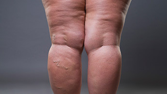 5 ćwiczeń pomagających pozbyć się cellulitu