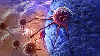 La théorie métabolique du cancer et la clé de la prévention et de la guérison du cancer