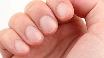 Sintomi delle unghie